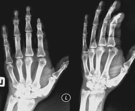luxacion: Trauma de caso: la película Mano izquierda AP, lateral encontró fractura intraarticular en MCP luxación de la articulación y MCP Foto de archivo