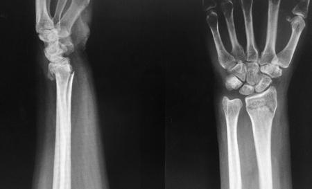 distal: Frattura del radio distale del polso sinistro