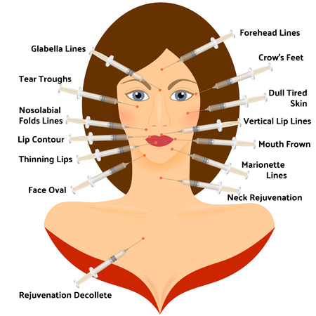 injections: Hyaluronic Asid Infographic. Plastic Surgery of the Face.  Facial Contouring. Methods of Rejuvenation. Plastic Surgery. Vector Illustration. Face Points for the Place Injections
