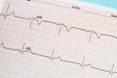 Part of an electrocardiogram printed in paper