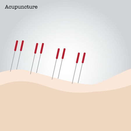 asian lifestyle: Getting acupuncture treatment. Vector illustration.