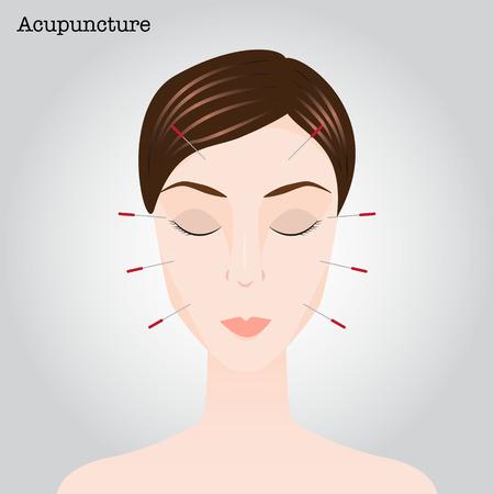 acupuntura china: Mujer que consigue un tratamiento de acupuntura. Ilustraci�n vectorial