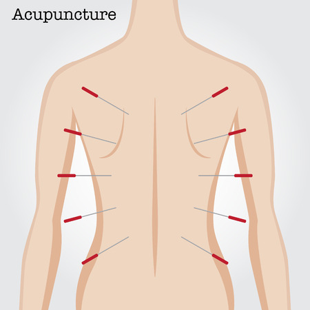 Recibir tratamiento de acupuntura. Ilustración del vector.