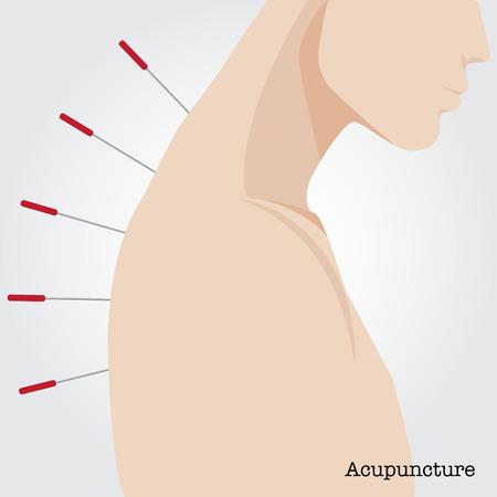 acupuntura china: Recibir tratamiento de acupuntura. Ilustraci�n del vector. Vectores