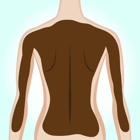 alternative medicine: Womans back getting mud treatment. Alternative medicine. Vector illustration