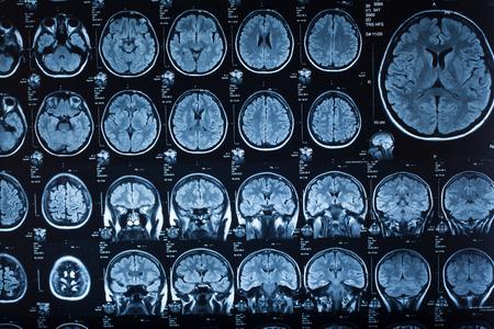 Zdjęcie rentgenowskie obrazu zbliżenia ludzkiego mózgu