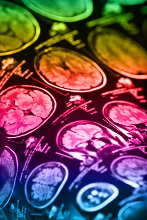 The X-ray of the human brain closeup image Stockfoto