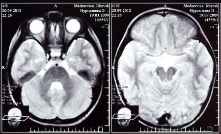 Imagen de rayos X de la tomograf�a computada de cerebro Foto de archivo - 15471884