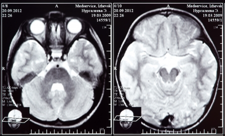 Imagen de rayos X de la tomografía computada de cerebro Foto de archivo - 15471884