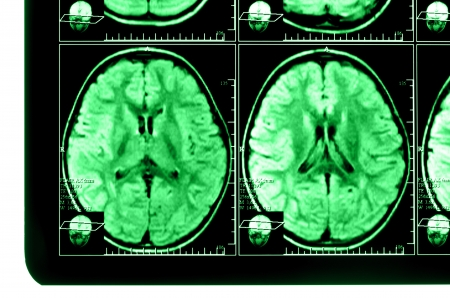 medical imaging: X-ray image of the brain computed tomography