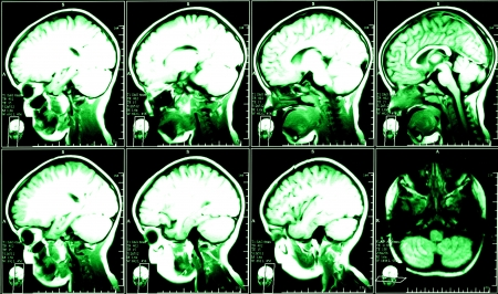 x ray equipment: X-ray image of the brain computed tomography