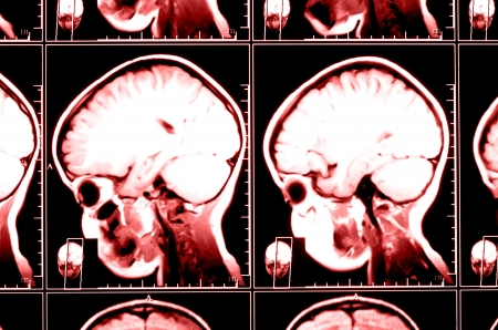 X-ray image of the brain computed tomography photo