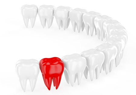 Aching tooth in row of healthy teeth. 3d photo