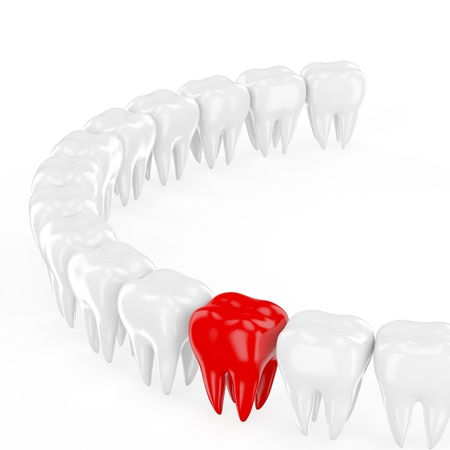 aching: Aching tooth in row of healthy teeth. 3d