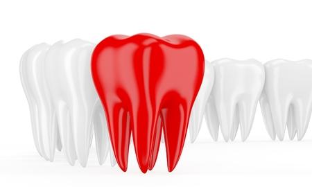 no teeth smile: Aching tooth in row of healthy teeth. 3d