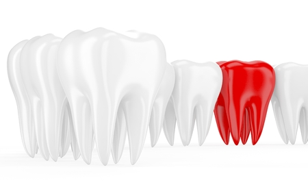 in a row: Aching tooth in row of healthy teeth. 3d