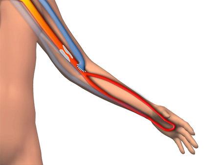 Brachiocephalic AV fistulas and brachial artery calcification
