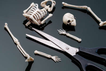 the dissected skeleton of the man in pieces is in front of the scissors. dismemberment weapon 版權商用圖片