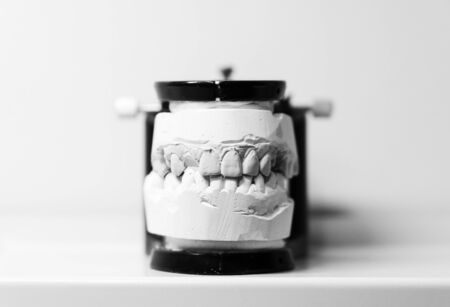 orthodontic prosthesis. laboratory. close-up. dental black and white. 写真素材