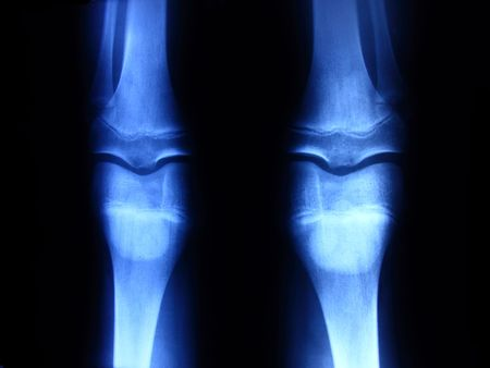 X-ray picture showing knee joints Stock Photo - 7919004