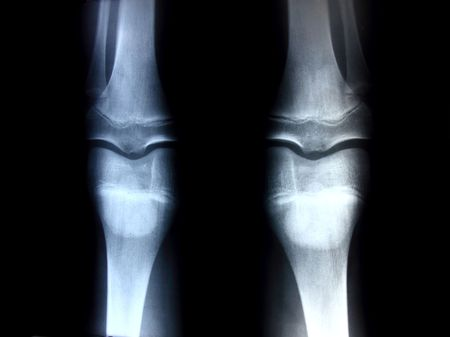 X-ray picture showing knee joints Stock Photo - 7919005
