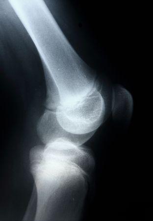 luxacion: Imagen mostrando las articulaciones de la rodilla de rayos x