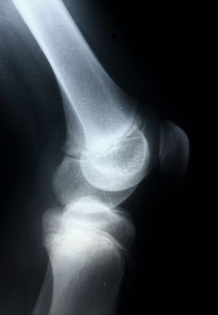 X-ray picture showing knee joints Stock Photo - 7919006