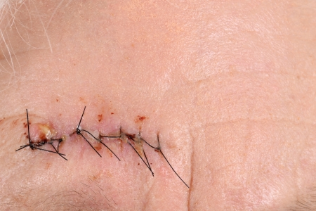 Macro sutures on forehead photo