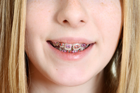 girl open mouth: Closeup teen girl with braces Stock Photo