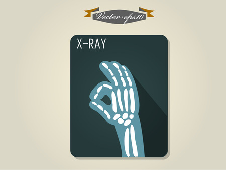 medical scans: x-ray film of hand vector
