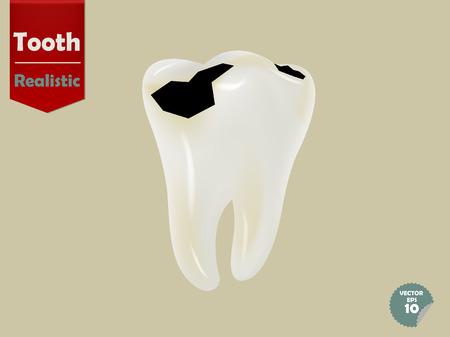 health concept: diente cariado realista, el concepto de salud dental