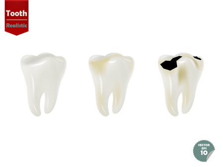 tooth whitening: set of realistic tooth including healthy tooth and decayed tooth
