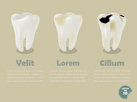 dientes con caries: conjunto de diente realista incluyendo diente sano y diente cariado, dentales info salud gr�ficos Vectores