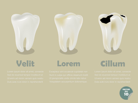 tooth decay: set of realistic tooth including healthy tooth and decayed tooth, dental health info graphics