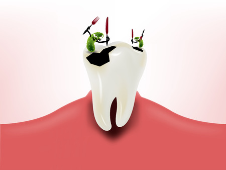 graphic design of bacteria eating tooth on gum, dental health design concept, decayed tooth