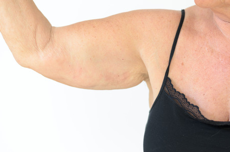elasticity: Senior woman wearing black laced bra while showing flabby arm, effect of aging caused by loss of elasticity and muscle