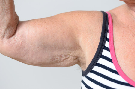 oldage: Close up Arm Muscles and Underarm of a Middle Aged Woman in Casual Sleeveless Shirt Isolated on Gray Background. Stock Photo