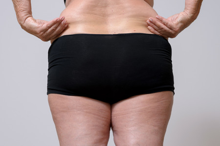 Close up Rear View of an Adult Woman in Black Underwear Holding her Fat Belly Against Sky Blue Background.