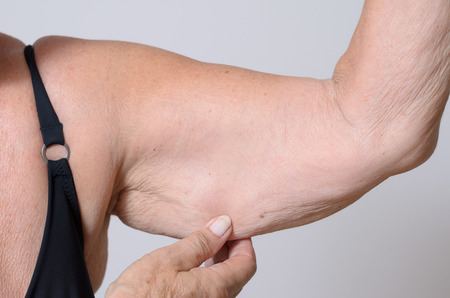 ageing: Elderly lady displaying the loose skin or flab due to ageing on her upper arm pinching it between her fingers, close up view Stock Photo