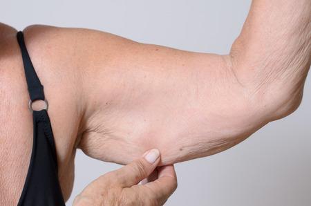 piel: Señora mayor visualización de la piel flácida o flacidez debido al envejecimiento de su brazo apretando entre sus dedos, vista de cerca