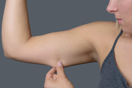 arm: Close up Conscious Young Woman Holding Excess Fat on her Arm Against Grey Wall Background. Stock Photo
