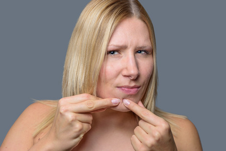 blackhead: Woman squeezing a pimple, spot zit or blackhead on her chin with her fingers, close up of her face and hands over grey Stock Photo