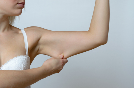 gordos: Mujer joven que muestra la piel fl�cida o flacidez debido al envejecimiento de su brazo apretando entre sus dedos, vista de cerca Foto de archivo