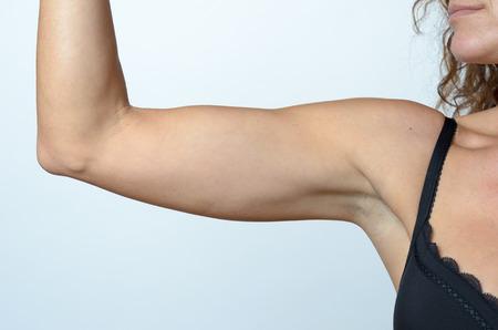 黒い服を着て中年の女性は、たるんだ腕、クローズ アップ、筋肉の弾力性の損失によって引き起こされる老化の効果を示しながらブラを混入