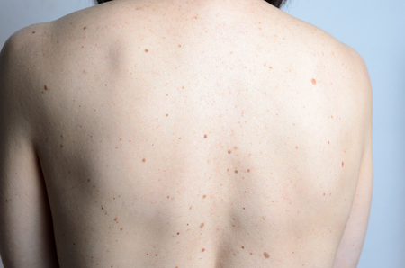 birthmark: Close up detail of the bare skin on a womans back with scattered moles and freckles Stock Photo