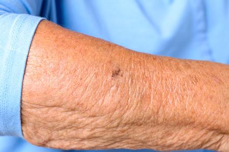 古い時代の記号との弾力性低下、肌のシミやシワを示す高齢者女性の前腕の詳細を閉じる