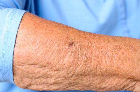 oldage: Close up detail of the forearm of an elderly woman showing the wrinkles and age spots of the skin in a sign of old-age and loss of elasticity
