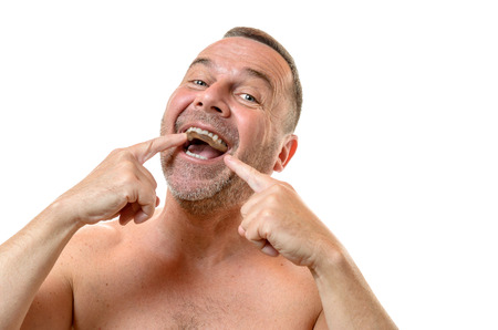bare chested: Bare chested man with short hair and stubble points to teeth with two fingers against a white background