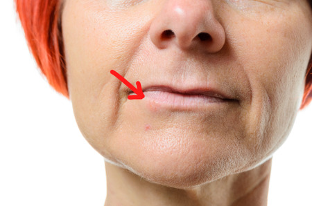 blemish: Close up view on face of middle aged woman pointing to blemish surrounded by one red arrow on chin over white background Stock Photo