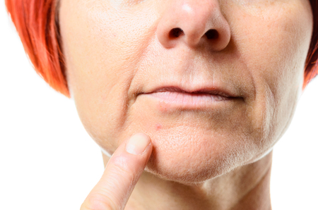 labialis: Extreme close up of older woman with red hair pointing to a blemish on her face against a white background Stock Photo